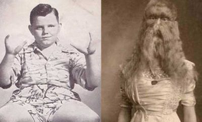So-Called 'Freaks' That Will Terrify Your Circus Experience